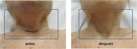 Eliminación manchas piel