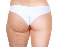 ¡Libérate de la celulitis y la grasa localizada!