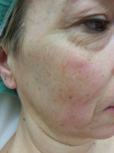 Eliminación de manchas faciales