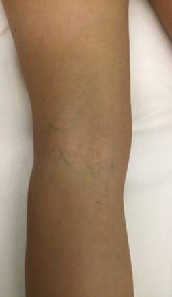 Inicio de tratamiento vascular