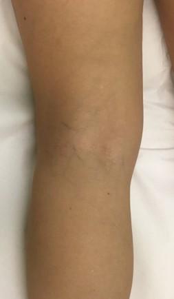 Resultados tras 2 sesiones de tratamiento vascular en la pierna