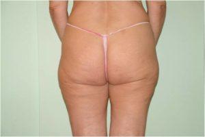 Celulitis antes