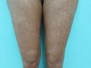 Efectos adversos depilación láser