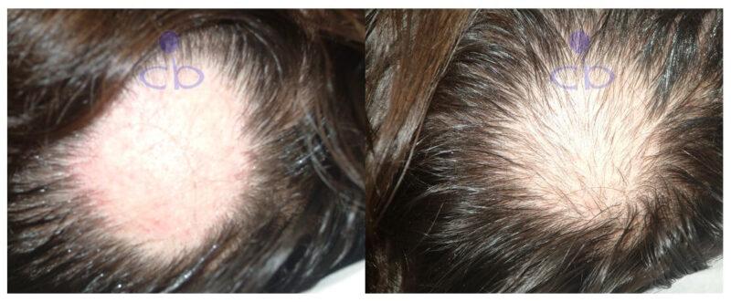 tratamiento alopecia decabobove