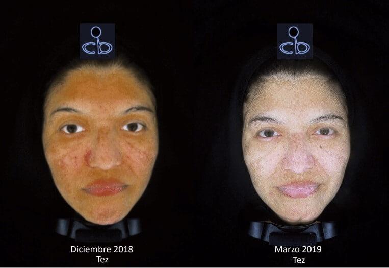 Tratamiento Melasma Clínica Decabobove